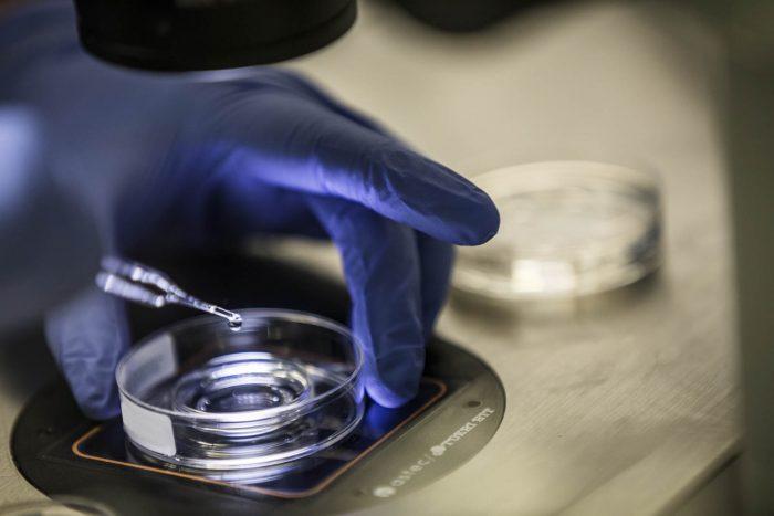 Punción y laboratorio